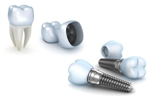 Implants dentaires Lyon rhône