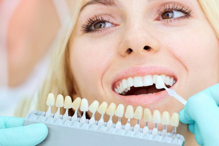 esthétique dentaire lyon